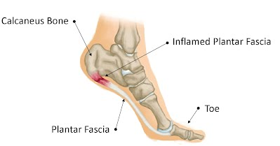 Image result for plantar fascia photo